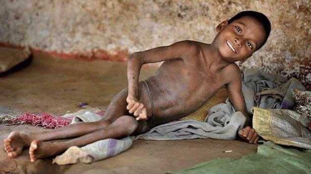 Желчекаменная болезнь диета народные средства лечения